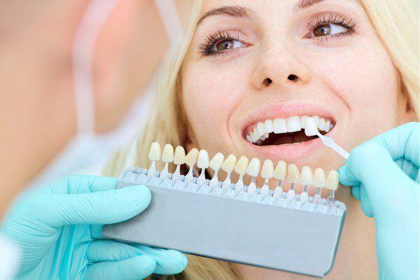 các phương pháp bọc răng sứ hiện nay