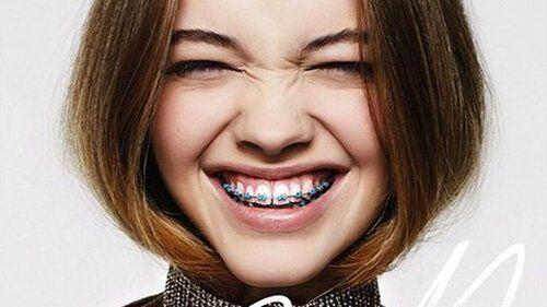 Các phương pháp khắc phục răng thưa