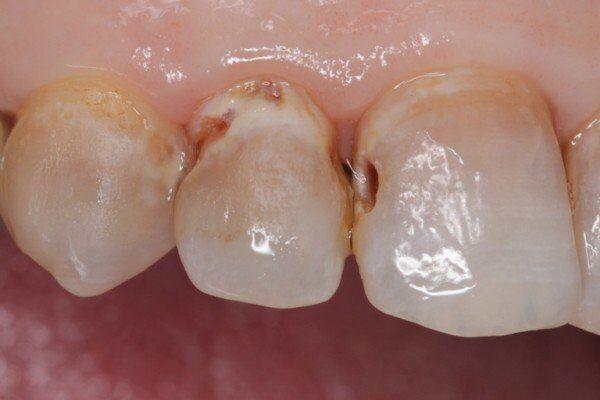 các triệu chứng của bệnh sâu răng