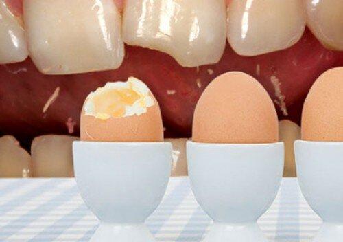 Làm gì để bảo vệ men răng tốt nhất