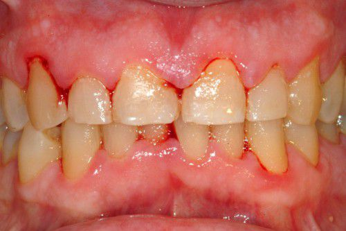 Chảy máu khi chải răng phải làm sao ?