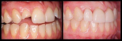 Cách bảo vệ tủy răng khi răng bị gãy, mẻ
