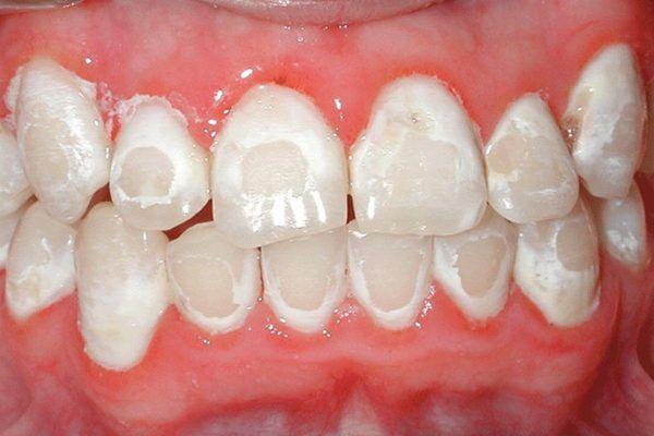 Cách bổ sung Flour cho răng miệng