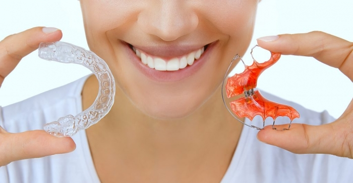 cách chăm sóc khí cụ duy trì sau niềng răng