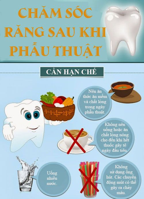 cách chăm sóc răng cấy ghép