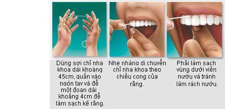 Cách chăm sóc răng miệng hằng ngày