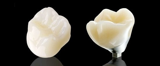 Cách chăm sóc răng sứ Lava Plus để tăng tuổi thọ răng sứ