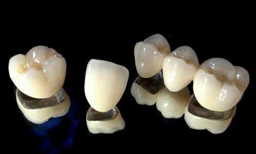 Cách chăm sóc răng sứ kim loại đúng cách