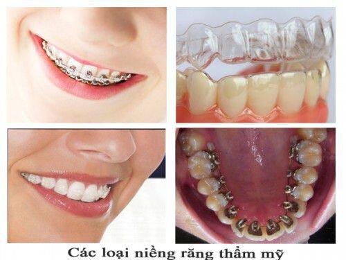 Cách điều trị răng vẩu