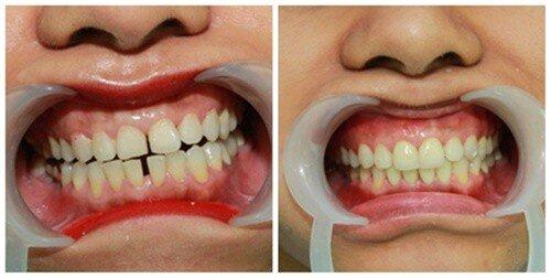 Răng thưa có cần chỉnh sửa không ?