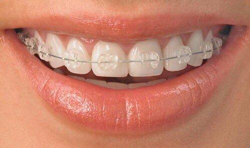 Những bất lợi khi niềng răng người lớn