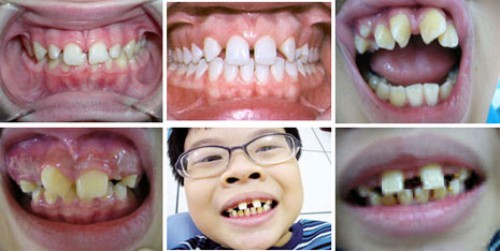 cách khắc phục răng thưa