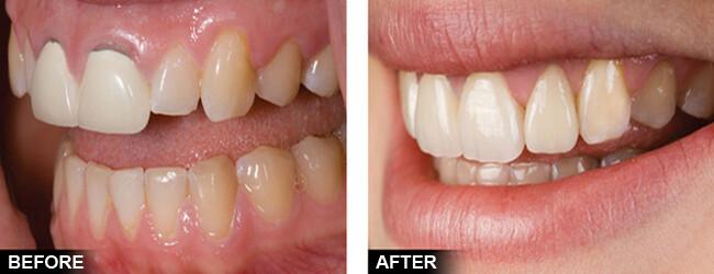 chỉnh sửa răng bị hô vẩu