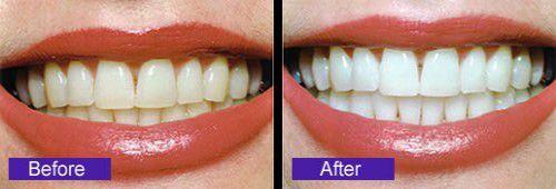 Tác dụng của niềng răng chỉnh nha