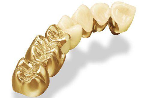 Cách nhận biết răng sứ kim loại?
