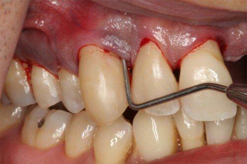 Cách phát hiện sâu răng sớm