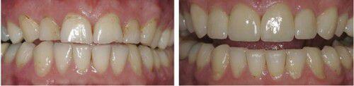 Làm trắng răng có hại như thế nào ?
