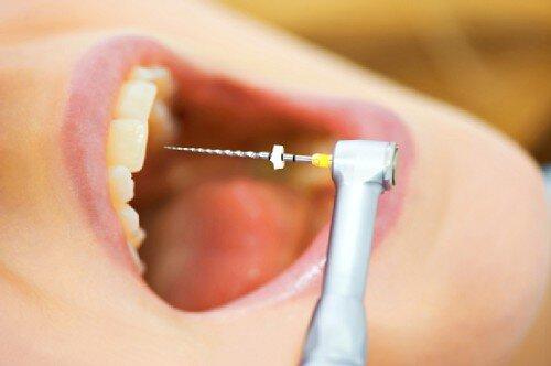 Cách phòng ngừa viêm tủy răng hiệu quả