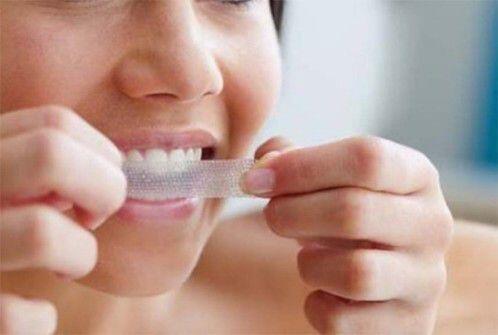Miếng dán tẩy trắng răng có thực sự tốt