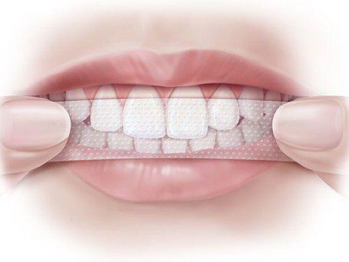 cách sử dụng miếng dán trắng răng tại nhà