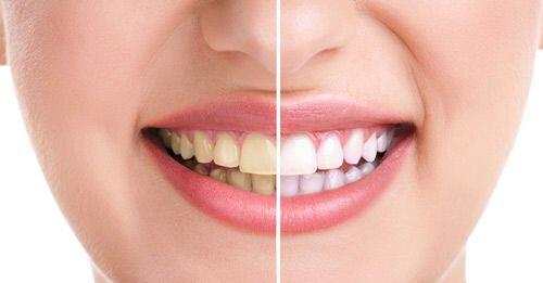 Sự hình thành vết dính trên răng miệng
