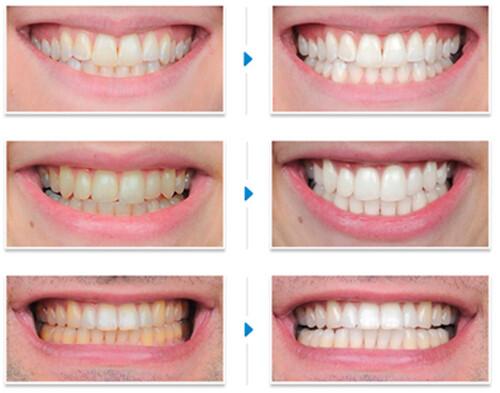 Tẩy trắng răng có khó không ?