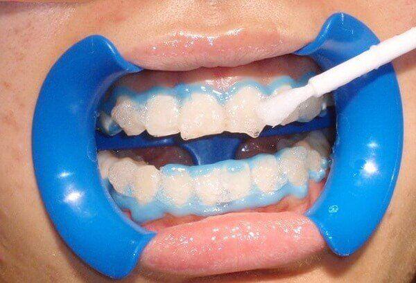 cách tẩy trắng răng đúng kỹ thuật