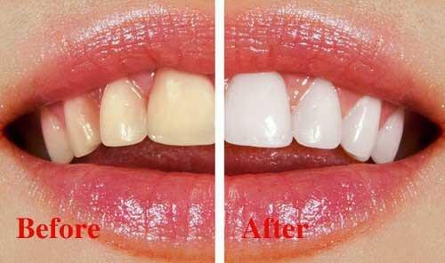 Cách tẩy vết ố vàng trên răng hiệu quả nhất