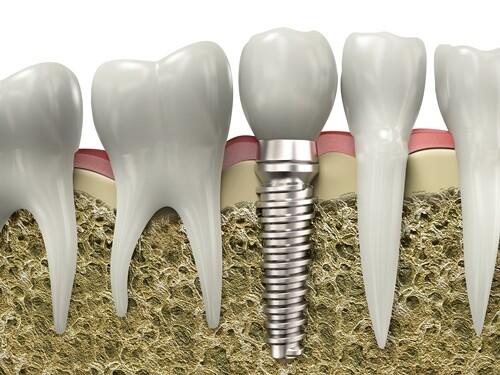 Những yếu tố ảnh hưởng đến chất lượng cắm ghép Implant