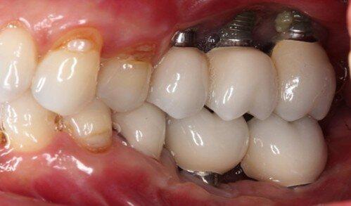 Cắm ghép implant có đau về sau không