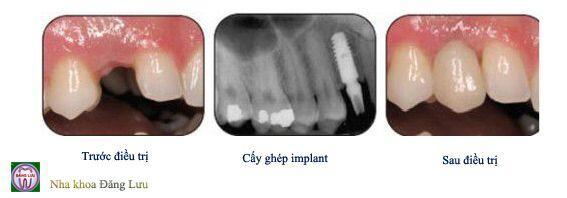 Quá trình cấy ghép implant cho răng hàm 3