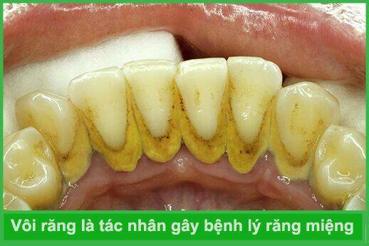 tác dụng của chanh và giấm với cao răng