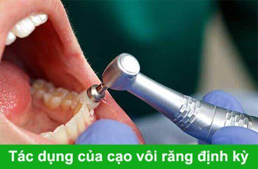 Tác dụng của cạo vôi răng