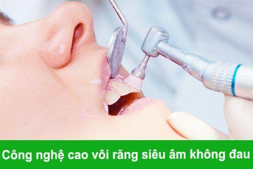 cạo vôi răng bao lâu 1 lần