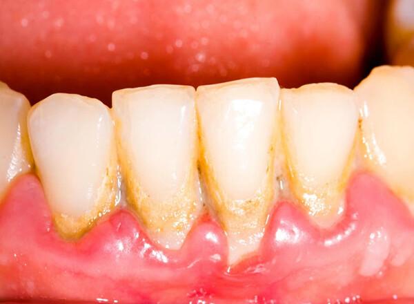 vôi răng