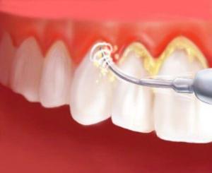 Cạo vôi răng bao lâu 1 lần ?