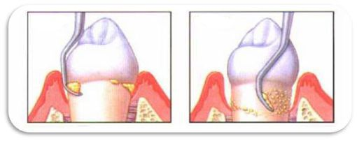 Cạo vôi răng có làm trắng răng không