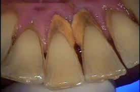 Nên cạo vôi răng bao lâu một lần? -1