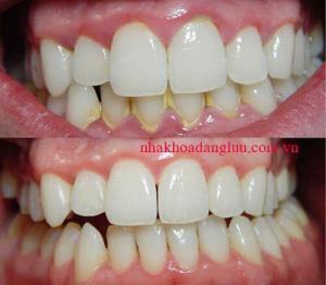 Cạo vôi răng mất bao lâu ?