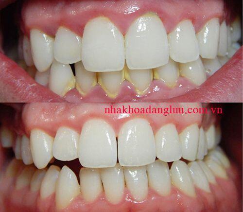 Lấy cao răng an toàn bằng phương pháp tự nhiên