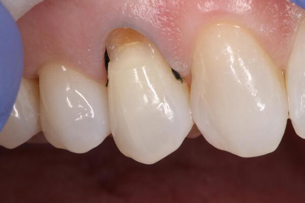 sự nguy hại của cao răng