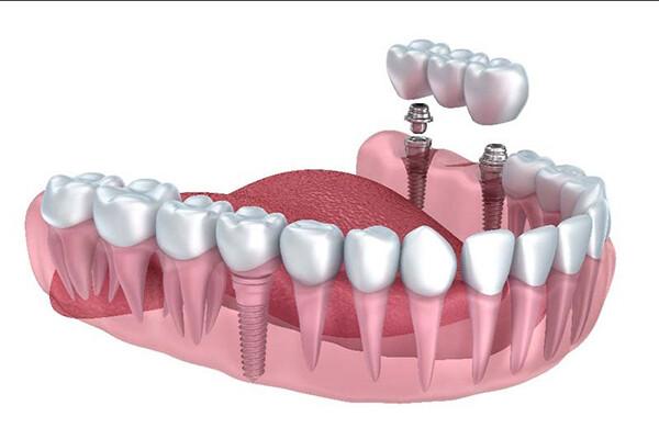 phục hình răng gãy