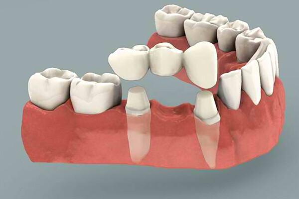 có thể làm cầu răng sứ cho răng implant