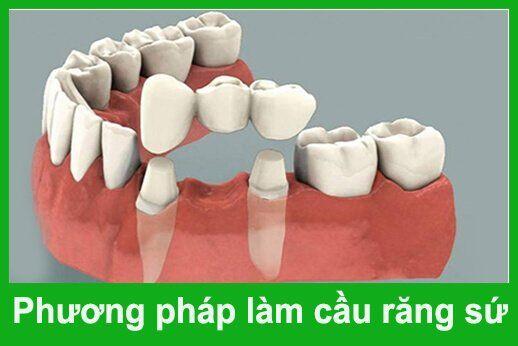 vì sao cầu răng không ngăn được tình trạng tiêu xương