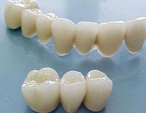 Cầu răng sứ tồn tại trong bao lâu
