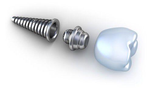 Chịu lực tức thì trên implant nha khoa là gì ?