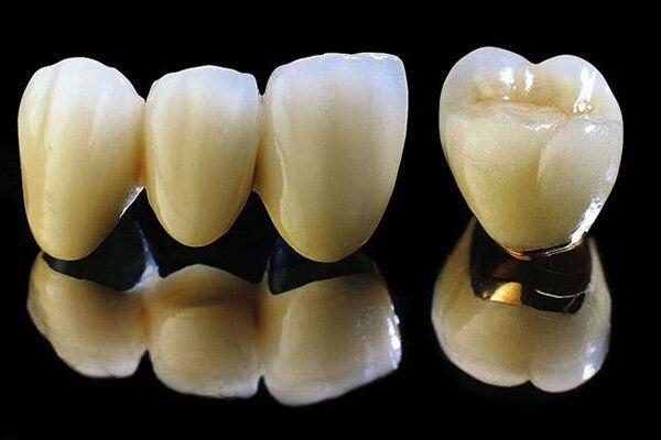 cấu tạo của răng sứ Titan