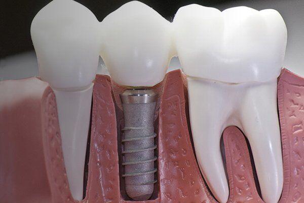 kỹ thuật Implant