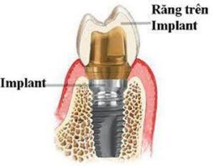 Cấy Ghép Implant Khi Bị Mất Một Răng