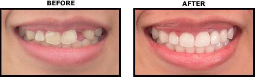 Chi phí làm răng giả